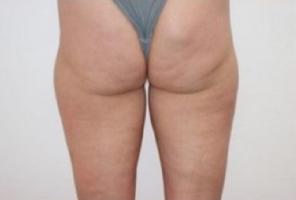 trattamento cellulite prima