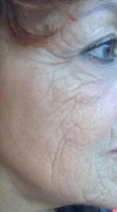 trattamento viso awr storz dopo