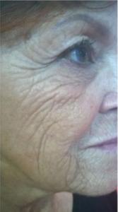 trattamento viso awr storz prima